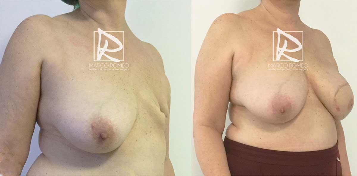 Reconstrucción mamaria - Ángulo derecho - Dr Marco Romeo