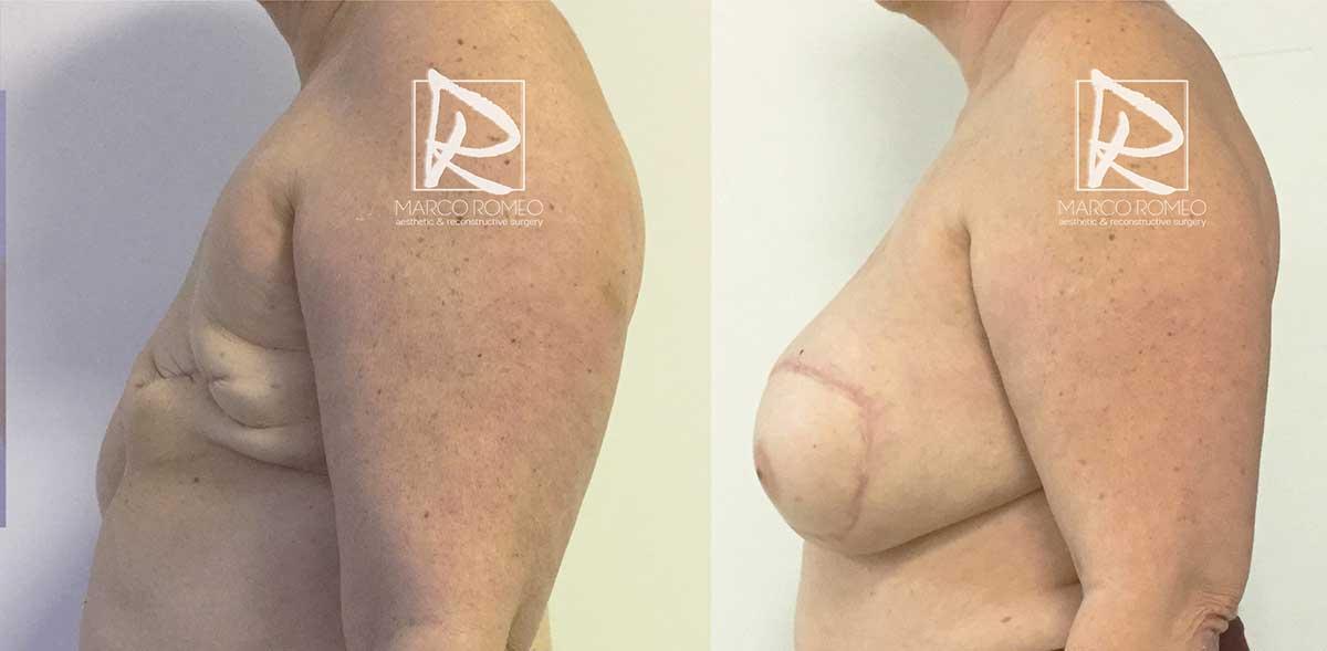 Reconstrucción mamaria - Lado izquierdo - Dr Marco Romeo
