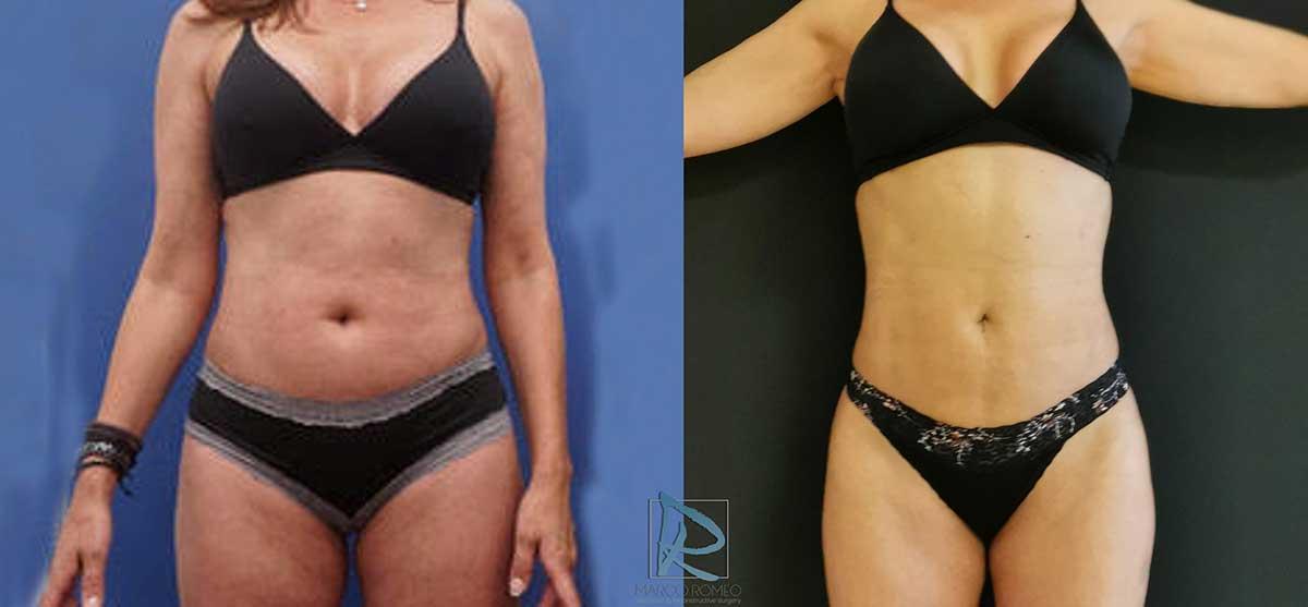 Liposucción antes y después - Dr Marco Romeo - 1