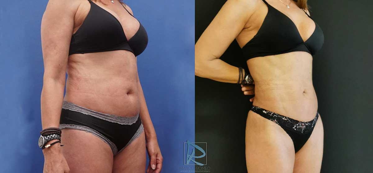 Liposucción antes y después - Dr Marco Romeo - 2