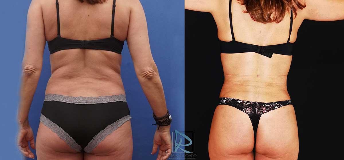 Liposucción antes y después - Dr Marco Romeo - 4